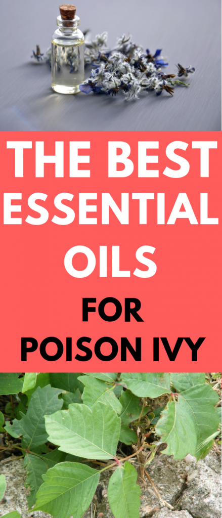 the best essential oils for poison ivy treatment
